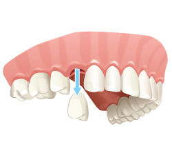 teethextractions.jpg