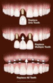 dental-implant-the-procedure.jpg