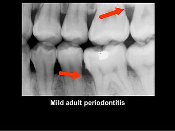 radiology-for-periodental-diseases-16-63