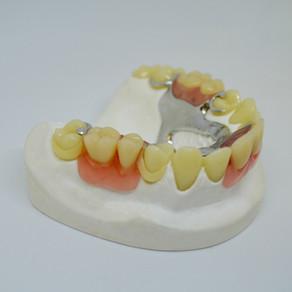 Zahnfarbene Klammern