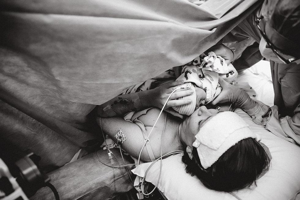 C-section birth photography denver.jpg