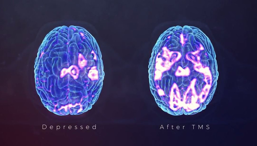 Brain After TMS Therapy