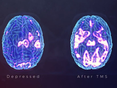 How does Transcranial Magnetic Stimulation (TMS) work?