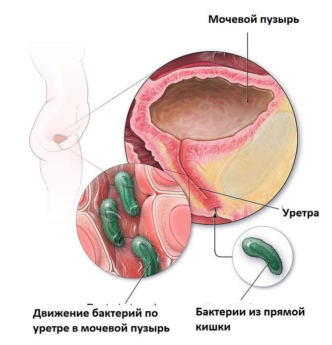 Хрнический бактериальный цистит.jpg