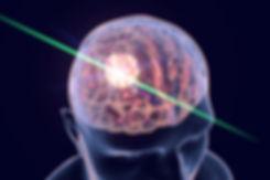 brain illuminated.jpg