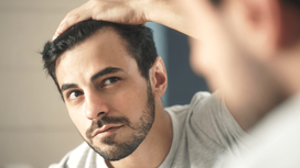 WHY DO WE LOSE HAIR?