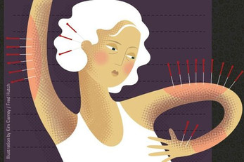 Acupuncture can curb AI-induced joint pain in some breast cancer patients