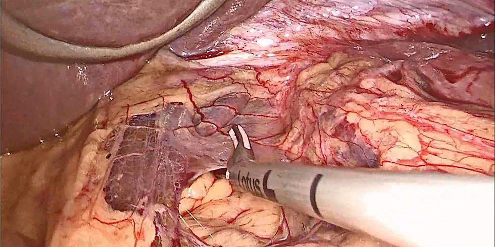 SOLD OUT 4th Advanced Laparoscopic Hiatal Surgery