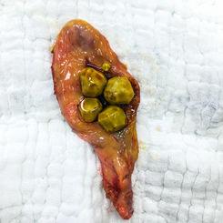 multiple cholesterol stone in gall bladd