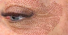 Fibroblast Skin Tightening.jpeg