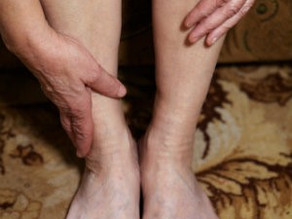 How Tarsal Tunnel Syndrome Develops