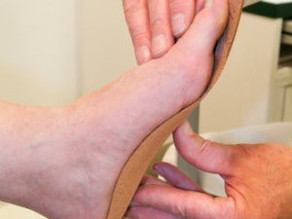 How Custom Orthotics Help with Heel Pain
