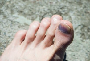 Suffering from Black Toenails? You Need a Change