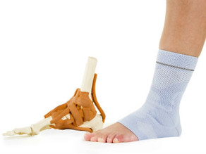 Don't Ruin the Holidays with an Achilles Rupture!