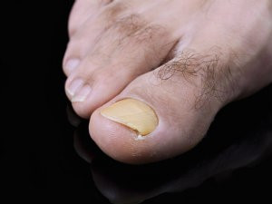 A Better Way to Zap Those Ugly Toenails