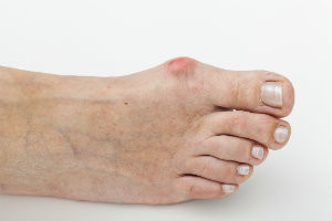 Are Bunions and Hammertoes Related?