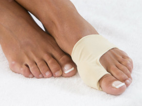 What Kind of Recovery Can I Expect After Bunion Surgery?