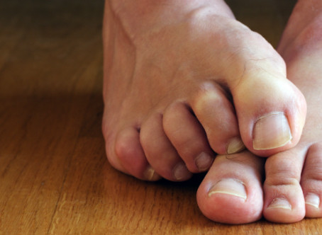 6 Reasons Why You Might Have Itching Feet