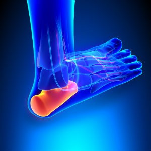 Are You at Risk for Heel Spurs?