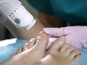 The Best Time for Laser Nail Fungus Treatment
