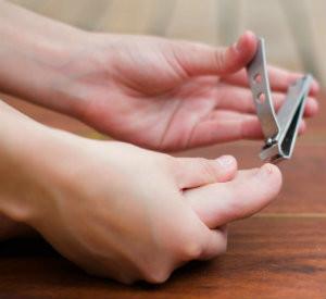 Treating Ingrown Toenails at Home