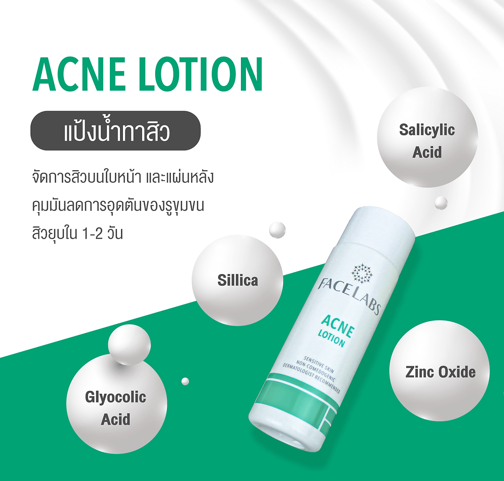 Acne Lotion แป้งน้ำลดสิว