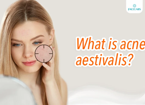 What is acne aestivalis?