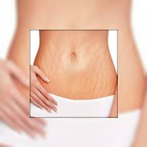 Sublative laser, Skin Resurfacing, skin tightening, acne scars, stretch marks