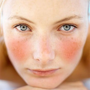 rosacea treatments, rosacea treatments near me, shelby twp. mi, rochester mi, rochester hills mi, evolution medical spa, GentleMax Pro, Rosacea, Sun Spots, age spots, Pigmentation, rosacea, Wrinkle Reduction.