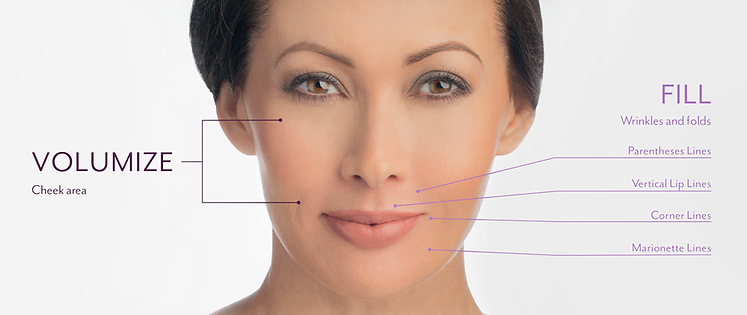evolution medical spa, juvederm, Juvederm near me, fillers, Enhance lips, plump up lines, under eye bags, facial fillers near me, nasolabia folds, wrinkle filler, lip lines, eye bags, fines lines, shelby twp Mi, rochester mi, rochester hills mi,