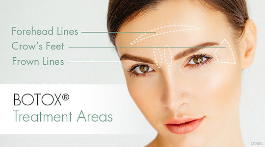 botox, evolution medicl spa, forehead lines, crow's feet, frown lines, botox treatment areas, best botox, botox treatments shelby twp, botox treatments rochester mi, botox treatments washington twp,