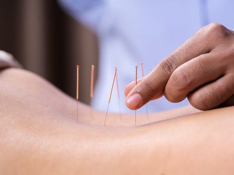 Acupuncture For Chronic Joint Pains