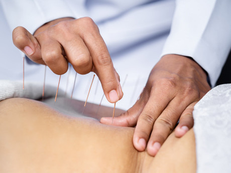 Top 8 Health Benefits Of Acupuncture