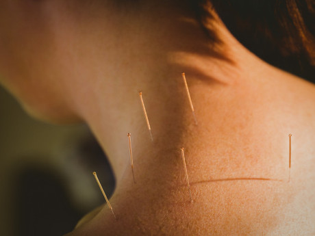 Chronic Neck Pain: Causes, Symptoms And Acupuncture Treatment