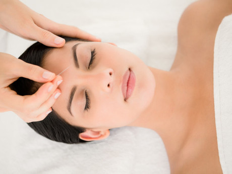 How Acupuncture Helps Manage Chronic Stress?