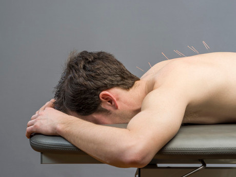 Acupuncture Can Help Ease Your Lower Back Pain