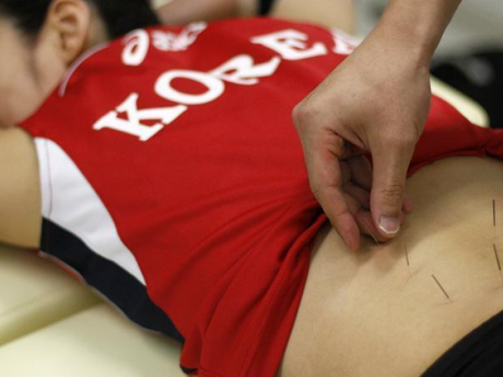 How Acupuncture Can Treat Sports Injuries?