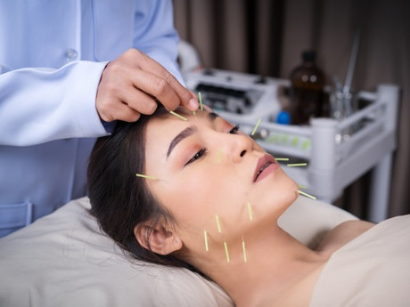 How To Choose The Right Acupuncturist?
