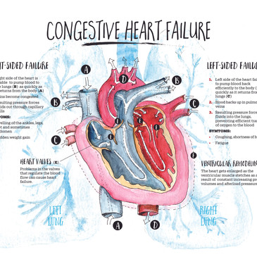 Congestive Heart Failure Infographic