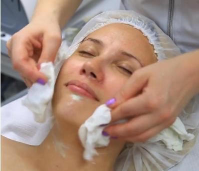 Top Things To Know If Considering A Chemical Peel