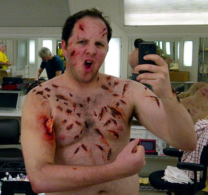 "Austin's special effects make-up from his episode of ""Grey's Anatomy"""