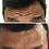 Thumbnail: BOTOX - 1 REGIÃO (COM RETOQUE)