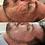 Thumbnail: PEELING 3D