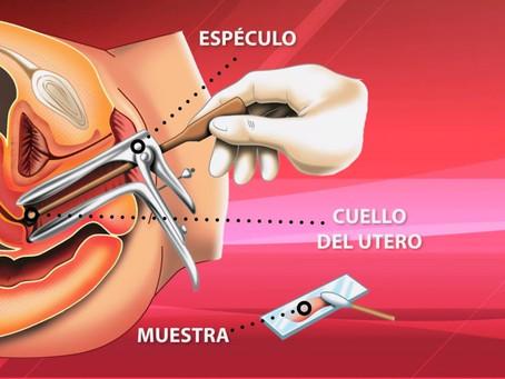 ¿Que es eso que usa la ginecóloga para el PAP?
