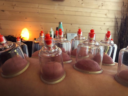 Cupping Therapy at Soulshine
