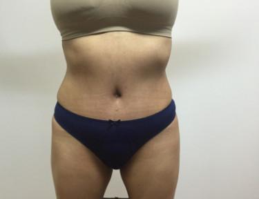 Abdominoplastia #4-2.jpg