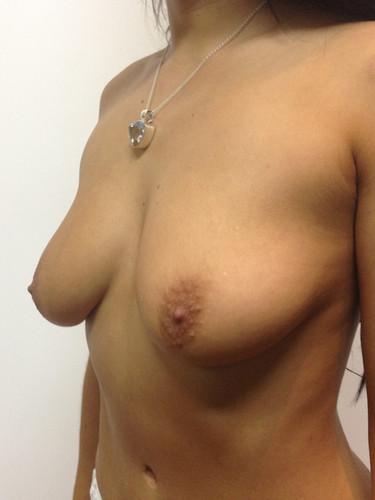 Aumento mamario A1.jpg