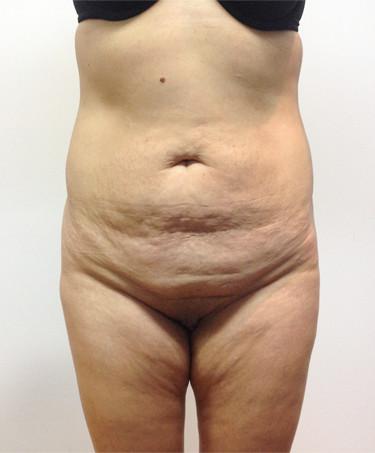 Abdominoplastia #1.jpg