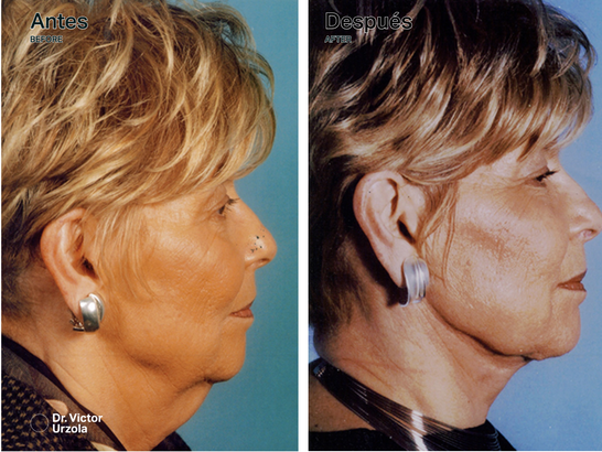NECK LIFT (3).png
