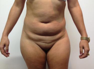 Abdominoplastia #3.jpg